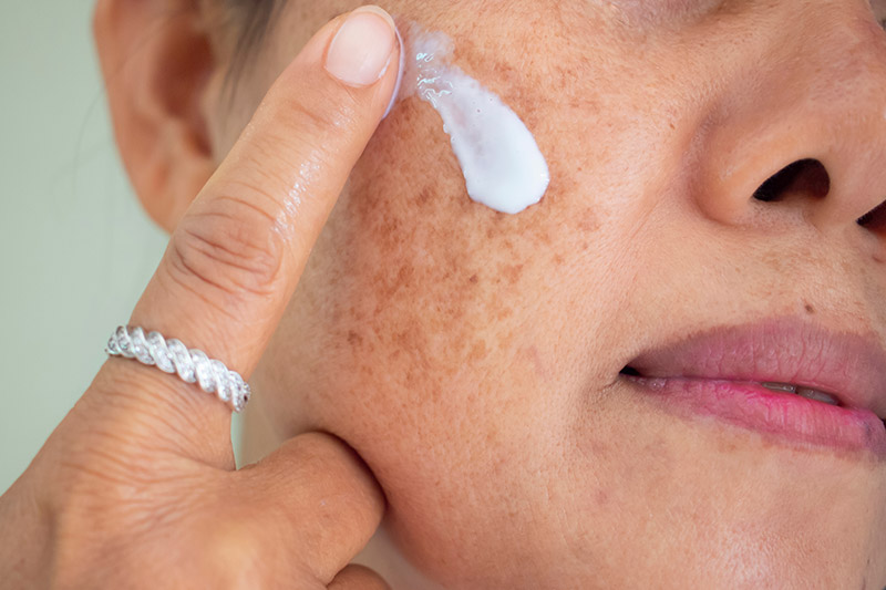 Viele Menschen stören sich an ihren Pigmentflecken. Mit unseren Beauty-Treatments können wir sie behandeln.