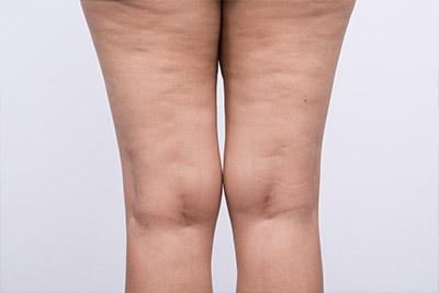 Cellulite wird in drei Phasen eingeteilt – von entstehend und noch nicht sichtbar bis zur komplett erschlafften Haut und gesundheitlichen Beeinträchtigungen.