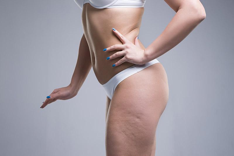 Cellulite wird in drei Phasen eingeteilt – von entstehend und noch nicht sichtbar bis zur komplett erschlafften Haut und gesundheitlichen Beeinträchtigungen - FineSkin - Ästhetische Chirurgie - Augenlidstraffung - Brustvergrösserung – Fettabsaugung - 3D Simulation (Beratung) - Ästhetische Dermatologie - Hyaluron - Muskelrelaxans - Fettwegspritze - Fadenlifting - PRP Vampire Lifting - TCA-Peeling - Medizinische Kosmetik (Gesicht) - Observer-Hautanalyse - HydraFacial - Mesotherapie - QuadroStar - Secret RF Microneedling - Diodenlaser MeDioStar - IS Clinical Fire & Ice - Chemische Peelings - Fruchtsäurepeeling -ICOONE Laser - Seyo TDA Beautysystem -Ultraschallbehandlung - BB Glow Microneedling - Klassiche Gesichtsbehandlung - Medizinische Kosmetik (Körper) - Kryolipolyse - ICOONE Laser Body - Secret RF Microneedling Body - Dauerhafte Haarentfernung - VIP Line Elektrotherapie Body - Methode Brigitte Kettner - iS Clinical - Aesthetico - IMAGE Skincare - Beauty Secrets