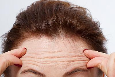 Mit den Jahren lässt die Stabilität und Elastizität des Hautgewebes nach – es bilden sich Falten.