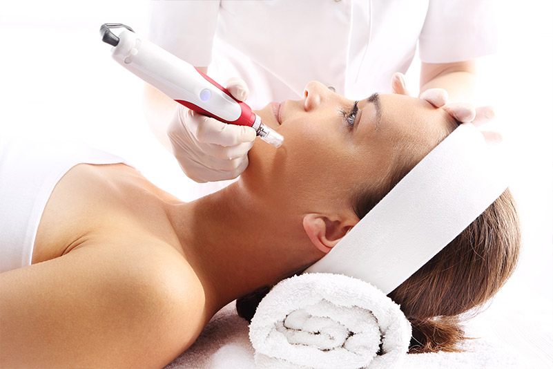 Secret RF Microneedling