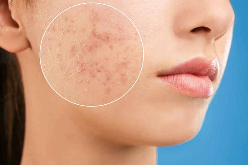 Wer unter Akne leidet, sollte auf eine gründliche Reinigung und schonende Pflege seiner Haut achten, dabei fettende Hautcremes und aggressive Seifen vermeiden.