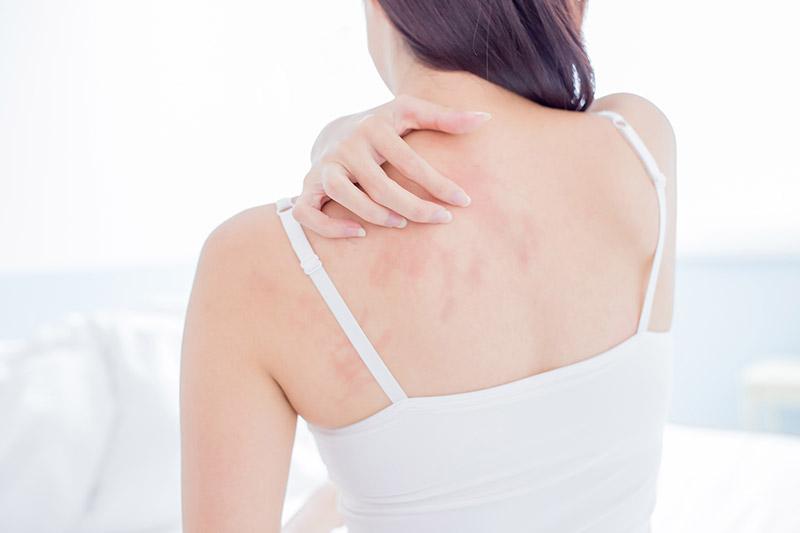 Hautausschlag - FineSkin - Ästhetische Chirurgie - Augenlidstraffung - Brustvergrösserung – Fettabsaugung - 3D Simulation (Beratung) - Ästhetische Dermatologie - Hyaluron - Muskelrelaxans - Fettwegspritze - Fadenlifting - PRP Vampire Lifting - TCA-Peeling - Medizinische Kosmetik (Gesicht) - Observer-Hautanalyse - HydraFacial - Mesotherapie - QuadroStar - Secret RF Microneedling - Diodenlaser MeDioStar - IS Clinical Fire & Ice - Chemische Peelings - Fruchtsäurepeeling -ICOONE Laser - Seyo TDA Beautysystem -Ultraschallbehandlung - BB Glow Microneedling - Klassiche Gesichtsbehandlung - Medizinische Kosmetik (Körper) - Kryolipolyse - ICOONE Laser Body - Secret RF Microneedling Body - Dauerhafte Haarentfernung - VIP Line Elektrotherapie Body - Methode Brigitte Kettner - iS Clinical - Aesthetico - IMAGE Skincare - Beauty Secrets