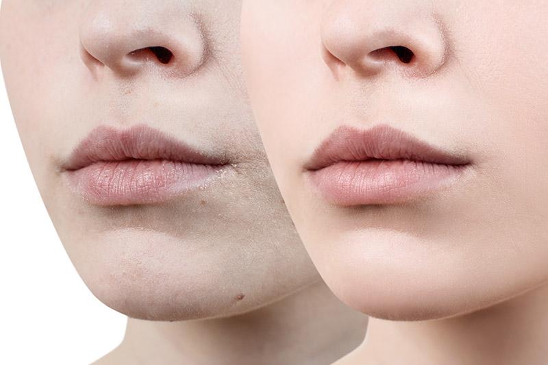 Trockene Haut - FineSkin - Ästhetische Chirurgie - Augenlidstraffung - Brustvergrösserung – Fettabsaugung - 3D Simulation (Beratung) - Ästhetische Dermatologie - Hyaluron - Muskelrelaxans - Fettwegspritze - Fadenlifting - PRP Vampire Lifting - TCA-Peeling - Medizinische Kosmetik (Gesicht) - Observer-Hautanalyse - HydraFacial - Mesotherapie - QuadroStar - Secret RF Microneedling - Diodenlaser MeDioStar - IS Clinical Fire & Ice - Chemische Peelings - Fruchtsäurepeeling -ICOONE Laser - Seyo TDA Beautysystem -Ultraschallbehandlung - BB Glow Microneedling - Klassiche Gesichtsbehandlung - Medizinische Kosmetik (Körper) - Kryolipolyse - ICOONE Laser Body - Secret RF Microneedling Body - Dauerhafte Haarentfernung - VIP Line Elektrotherapie Body - Methode Brigitte Kettner - iS Clinical - Aesthetico - IMAGE Skincare - Beauty Secrets