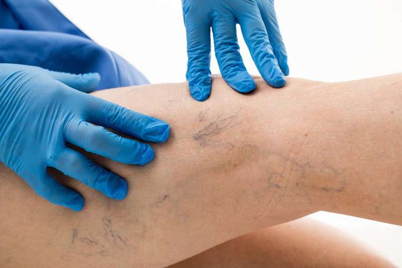 Besenreiser: Bläuliche, gut sichtbare Adern unter der Haut - FineSkin - Ästhetische Chirurgie - Augenlidstraffung - Brustvergrösserung – Fettabsaugung - 3D Simulation (Beratung) - Ästhetische Dermatologie - Hyaluron - Muskelrelaxans - Fettwegspritze - Fadenlifting - PRP Vampire Lifting - TCA-Peeling - Medizinische Kosmetik (Gesicht) - Observer-Hautanalyse - HydraFacial - Mesotherapie - QuadroStar - Secret RF Microneedling - Diodenlaser MeDioStar - IS Clinical Fire & Ice - Chemische Peelings - Fruchtsäurepeeling -ICOONE Laser - Seyo TDA Beautysystem -Ultraschallbehandlung - BB Glow Microneedling - Klassiche Gesichtsbehandlung - Medizinische Kosmetik (Körper) - Kryolipolyse - ICOONE Laser Body - Secret RF Microneedling Body - Dauerhafte Haarentfernung - VIP Line Elektrotherapie Body - Methode Brigitte Kettner - iS Clinical - Aesthetico - IMAGE Skincare - Beauty Secrets