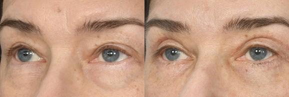 Augenlidstraffung - FineSkin - Ästhetische Chirurgie - Augenlidstraffung - Brustvergrösserung – Fettabsaugung - 3D Simulation (Beratung) - Ästhetische Dermatologie - Hyaluron - Muskelrelaxans - Fettwegspritze - Fadenlifting - PRP Vampire Lifting - TCA-Peeling - Medizinische Kosmetik (Gesicht) - Observer-Hautanalyse - HydraFacial - Mesotherapie - QuadroStar - Secret RF Microneedling - Diodenlaser MeDioStar - IS Clinical Fire & Ice - Chemische Peelings - Fruchtsäurepeeling -ICOONE Laser - Seyo TDA Beautysystem -Ultraschallbehandlung - BB Glow Microneedling - Klassiche Gesichtsbehandlung - Medizinische Kosmetik (Körper) - Kryolipolyse - ICOONE Laser Body - Secret RF Microneedling Body - Dauerhafte Haarentfernung - VIP Line Elektrotherapie Body - Methode Brigitte Kettner - iS Clinical - Aesthetico - IMAGE Skincare - Beauty Secrets