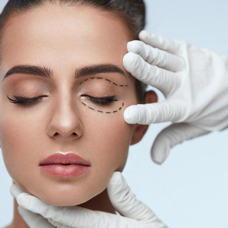 Durch eine professionelle Straffung der Oberlider sind Schlupflider und ein müder Augenausdruck passé - FineSkin - Ästhetische Chirurgie - Augenlidstraffung - Brustvergrösserung – Fettabsaugung - 3D Simulation (Beratung) - Ästhetische Dermatologie - Hyaluron - Muskelrelaxans - Fettwegspritze - Fadenlifting - PRP Vampire Lifting - TCA-Peeling - Medizinische Kosmetik (Gesicht) - Observer-Hautanalyse - HydraFacial - Mesotherapie - QuadroStar - Secret RF Microneedling - Diodenlaser MeDioStar - IS Clinical Fire & Ice - Chemische Peelings - Fruchtsäurepeeling -ICOONE Laser - Seyo TDA Beautysystem -Ultraschallbehandlung - BB Glow Microneedling - Klassiche Gesichtsbehandlung - Medizinische Kosmetik (Körper) - Kryolipolyse - ICOONE Laser Body - Secret RF Microneedling Body - Dauerhafte Haarentfernung - VIP Line Elektrotherapie Body - Methode Brigitte Kettner - iS Clinical - Aesthetico - IMAGE Skincare - Beauty Secrets