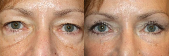 Augelidstraffung - FineSkin - Ästhetische Chirurgie - Augenlidstraffung - Brustvergrösserung – Fettabsaugung - 3D Simulation (Beratung) - Ästhetische Dermatologie - Hyaluron - Muskelrelaxans - Fettwegspritze - Fadenlifting - PRP Vampire Lifting - TCA-Peeling - Medizinische Kosmetik (Gesicht) - Observer-Hautanalyse - HydraFacial - Mesotherapie - QuadroStar - Secret RF Microneedling - Diodenlaser MeDioStar - IS Clinical Fire & Ice - Chemische Peelings - Fruchtsäurepeeling -ICOONE Laser - Seyo TDA Beautysystem -Ultraschallbehandlung - BB Glow Microneedling - Klassiche Gesichtsbehandlung - Medizinische Kosmetik (Körper) - Kryolipolyse - ICOONE Laser Body - Secret RF Microneedling Body - Dauerhafte Haarentfernung - VIP Line Elektrotherapie Body - Methode Brigitte Kettner - iS Clinical - Aesthetico - IMAGE Skincare - Beauty Secrets