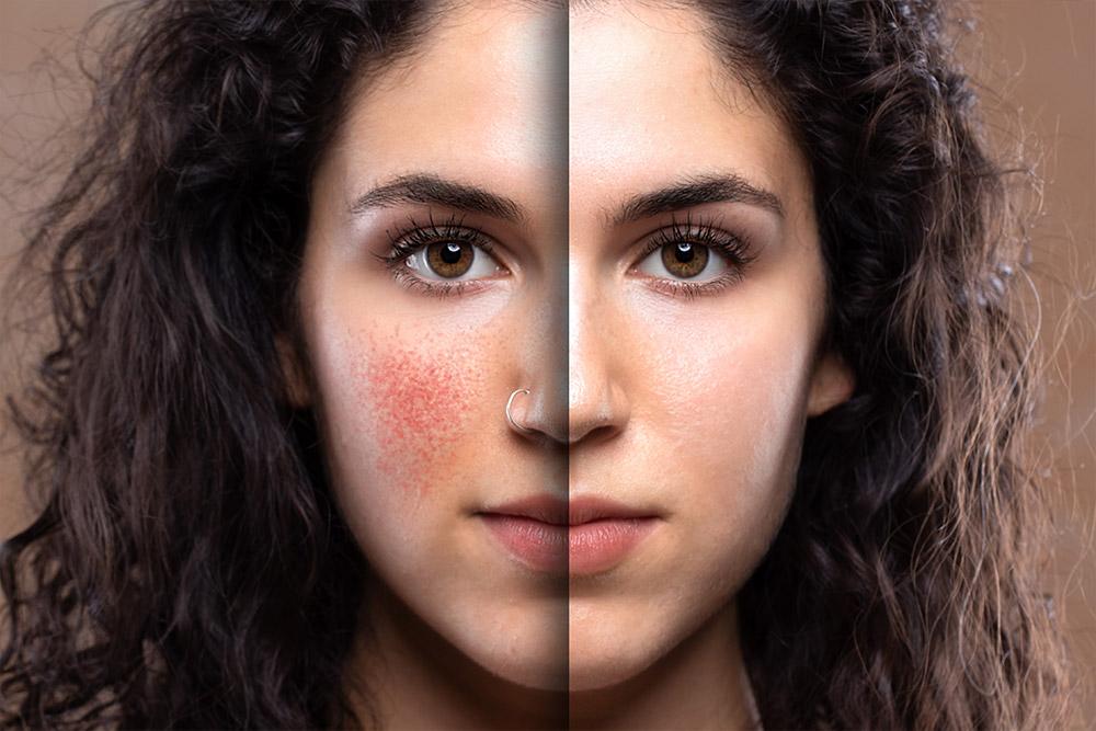 Dermatologie beschäftigt sich mit den Erkrankungen bzw. krankhaften oder allergisch hervorgerufenen Veränderungen der gesunden Haut - FineSkin - Ästhetische Chirurgie - Augenlidstraffung - Brustvergrösserung – Fettabsaugung - 3D Simulation (Beratung) - Ästhetische Dermatologie - Hyaluron - Muskelrelaxans - Fettwegspritze - Fadenlifting - PRP Vampire Lifting - TCA-Peeling - Medizinische Kosmetik (Gesicht) - Observer-Hautanalyse - HydraFacial - Mesotherapie - QuadroStar - Secret RF Microneedling - Diodenlaser MeDioStar - IS Clinical Fire & Ice - Chemische Peelings - Fruchtsäurepeeling -ICOONE Laser - Seyo TDA Beautysystem -Ultraschallbehandlung - BB Glow Microneedling - Klassiche Gesichtsbehandlung - Medizinische Kosmetik (Körper) - Kryolipolyse - ICOONE Laser Body - Secret RF Microneedling Body - Dauerhafte Haarentfernung - VIP Line Elektrotherapie Body - Methode Brigitte Kettner - iS Clinical - Aesthetico - IMAGE Skincare - Beauty Secrets