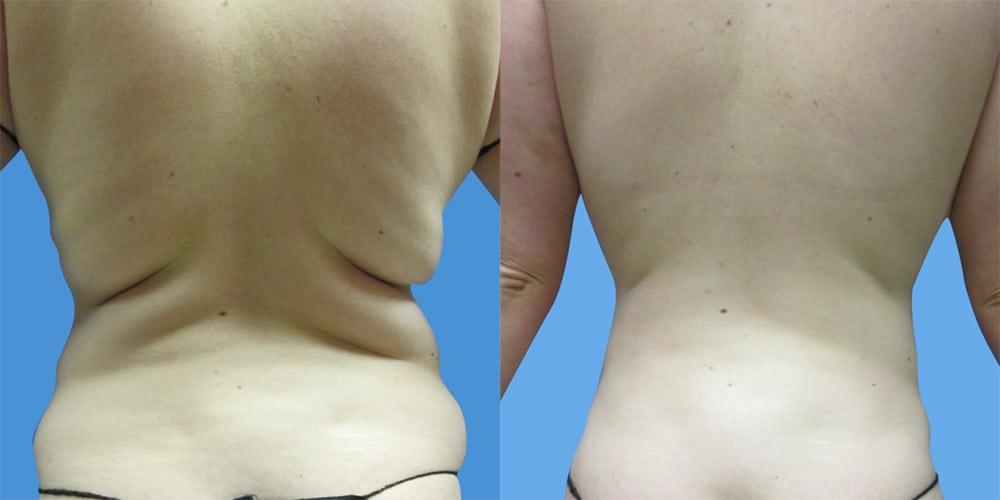 Vorher / Nachher Bild einer Fettabsaugung an Bauch und Hüfte - FineSkin - Ästhetische Chirurgie - Augenlidstraffung - Brustvergrösserung – Fettabsaugung - 3D Simulation (Beratung) - Ästhetische Dermatologie - Hyaluron - Muskelrelaxans - Fettwegspritze - Fadenlifting - PRP Vampire Lifting - TCA-Peeling - Medizinische Kosmetik (Gesicht) - Observer-Hautanalyse - HydraFacial - Mesotherapie - QuadroStar - Secret RF Microneedling - Diodenlaser MeDioStar - IS Clinical Fire & Ice - Chemische Peelings - Fruchtsäurepeeling -ICOONE Laser - Seyo TDA Beautysystem -Ultraschallbehandlung - BB Glow Microneedling - Klassiche Gesichtsbehandlung - Medizinische Kosmetik (Körper) - Kryolipolyse - ICOONE Laser Body - Secret RF Microneedling Body - Dauerhafte Haarentfernung - VIP Line Elektrotherapie Body - Methode Brigitte Kettner - iS Clinical - Aesthetico - IMAGE Skincare - Beauty Secrets